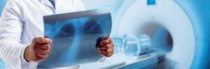Radiation Therapy - VishwaRaj Hospital