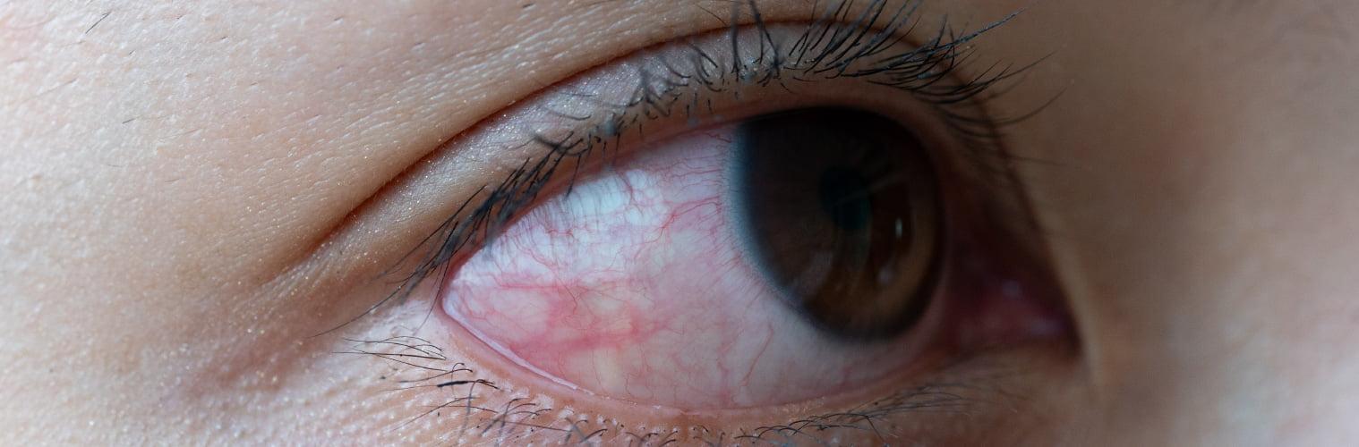 Eye with Glaucoma - VishwaRaj Hospital
