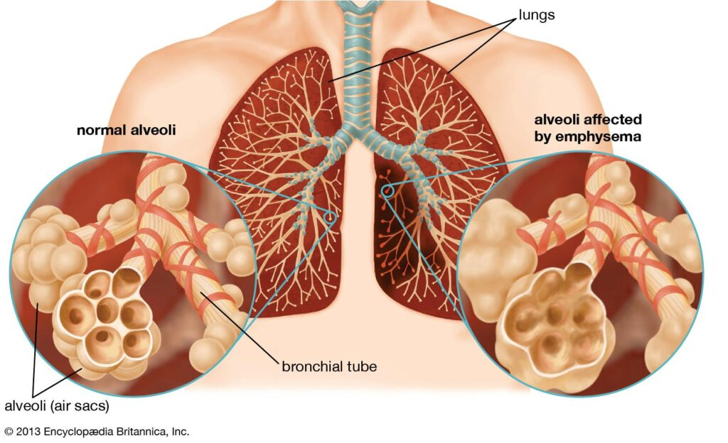 Excellent recovery in type II respiratory failure - VishwaRaj Hospital