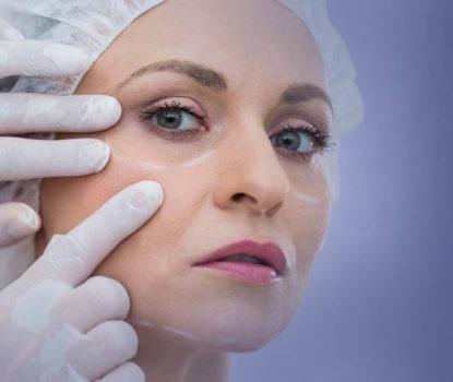 Laser Treatment for Wrinkles - VishwaRaj Hospital